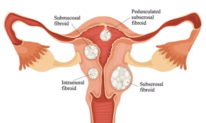 Fibroid - Jenis Fibroid